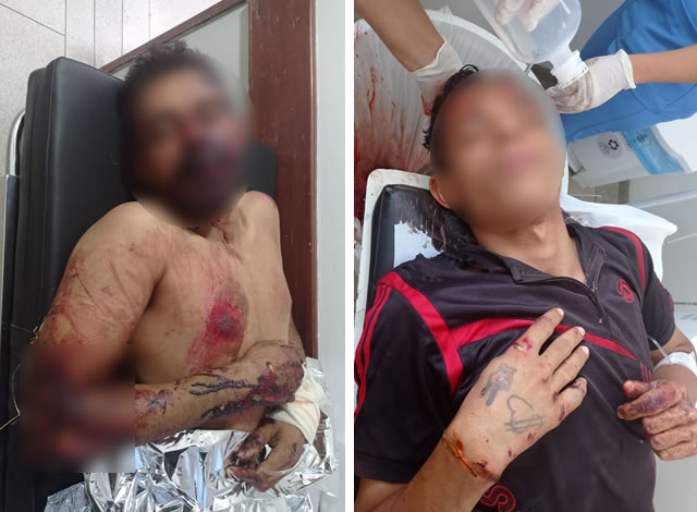 Dupla fica gravemente ferida após tentativa de assalto na PB-383, entre Sousa e Lastro