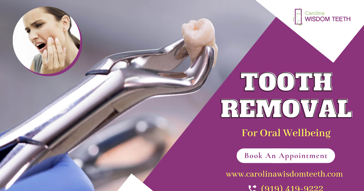 Ensure Oral Wellbeing With Tooth Extraction