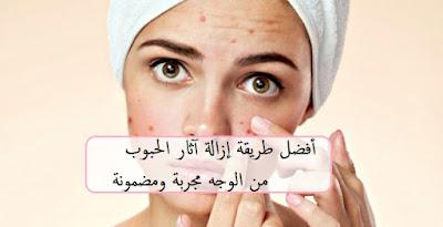 أفضل طريقة إزالة آثار الحبوب من الوجه مجربة ومضمونة