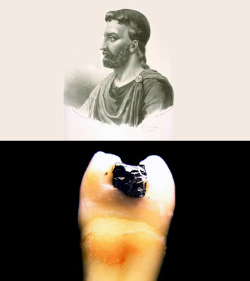 Roman physician Celsus and the first tooth lead filling in a cavity
