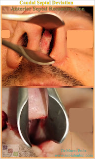Open technique nasal septum correction surgery,Septum deviation surgery,Open tecnique septoplasty,Treatment of nasal septum deviation,open technique septoplasty in İstanbul,