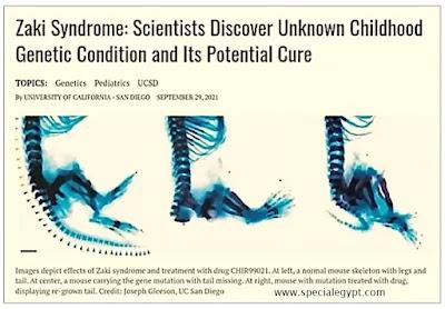 متلازمة زكى zaki syndrome