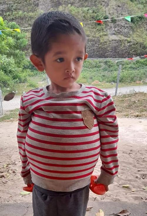 Cậu bé Sin Huy Vũ ở Pá Bon có bụng to như bà bầu