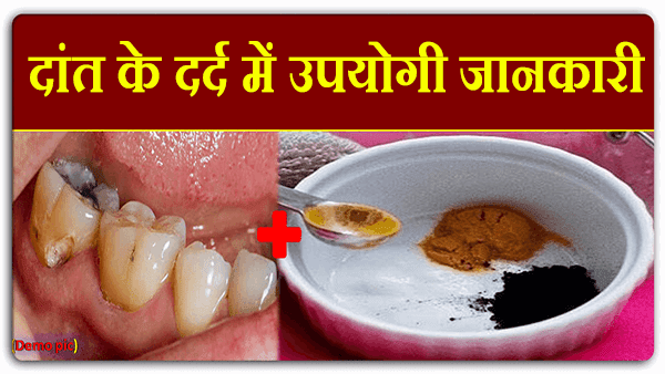 दांत के दर्द में उपयोगी जानकारी